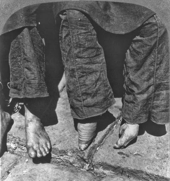 Comparação entre um pé normal e um pé de Lótus