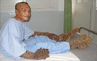 δεντράνθρωπος,κρόνιος,ασθενής,δερματοπάθεια,tree man,Cronian, patient, dermatosis