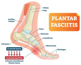 Plantar fasciitis, nyeri tumit
