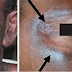 Bleaching Your Skin – Here's how it Destroys Your Skin & Health