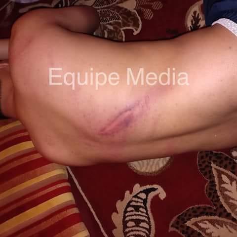 صور أولية للتدخل الهمجي المغربي ضد المتظاهرين الصحراويين خلال زيارة كوهلر للعيون المحتلة