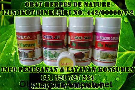 {Obat Herpes Herbal de Nature Indonesia|Obat Herpes de Nature|Obat Herpes Ampuh}