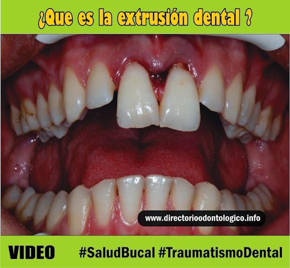 extrusión-dental
