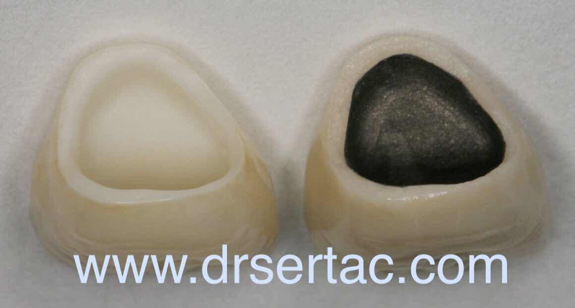 zirkonyum diş kaplama ile porselen diş farkı