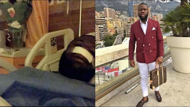 """Gucci Nose Loading""- Nigerians Troll Hushpuppi After He Underwent A Nose Surgery (Photos)"