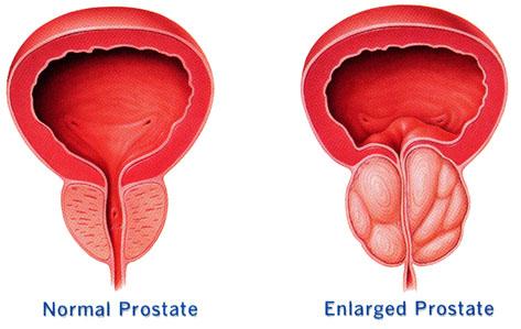 Padidėjusi prostata