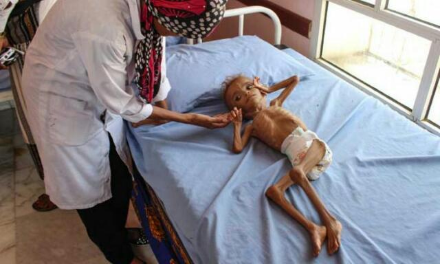 الأمم المتحدة تخسر الحرب ضد المجاعة في اليمن