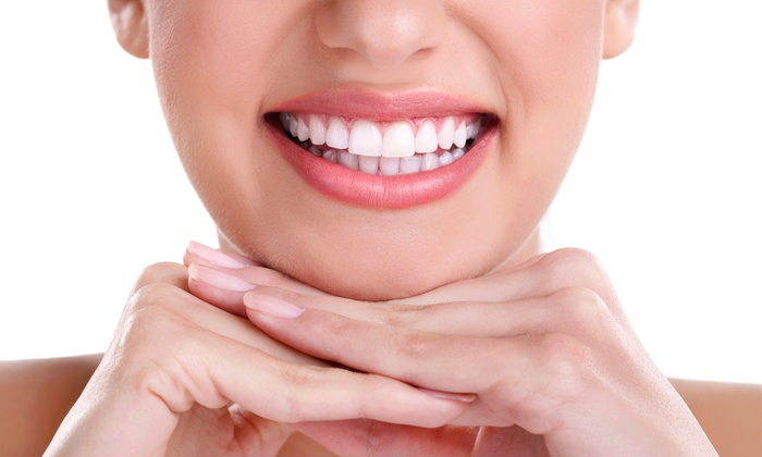 Home Recipes For Teeth Whitening Are Guaranteed Results 1