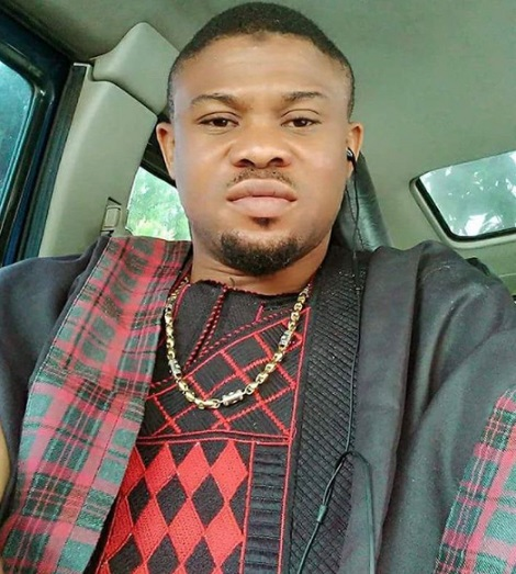 Nollywood Actor Hospitalized, Almost Lost An Eye Following Fatal Car Crash (Photos)
