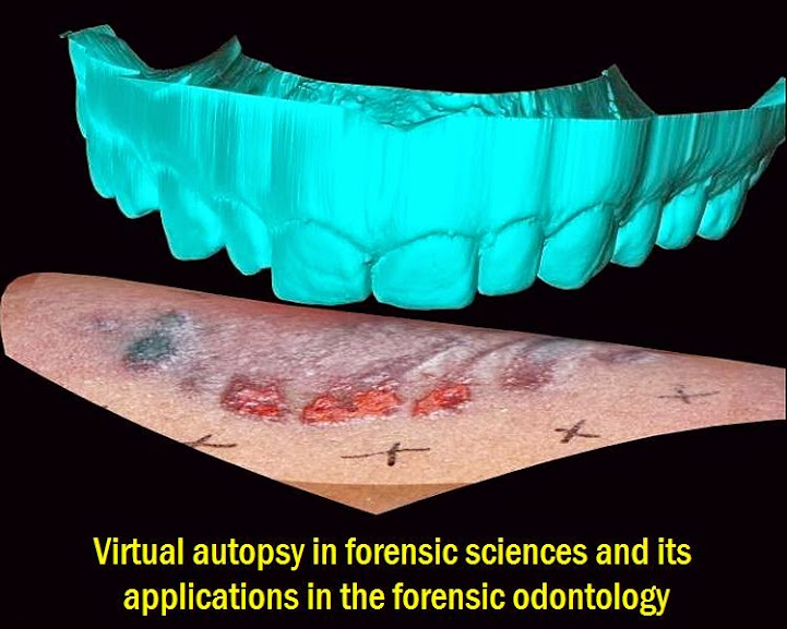 forensic-odontology