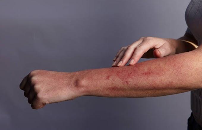 Sunburn treatment:What is the best home remedy for sunburn?