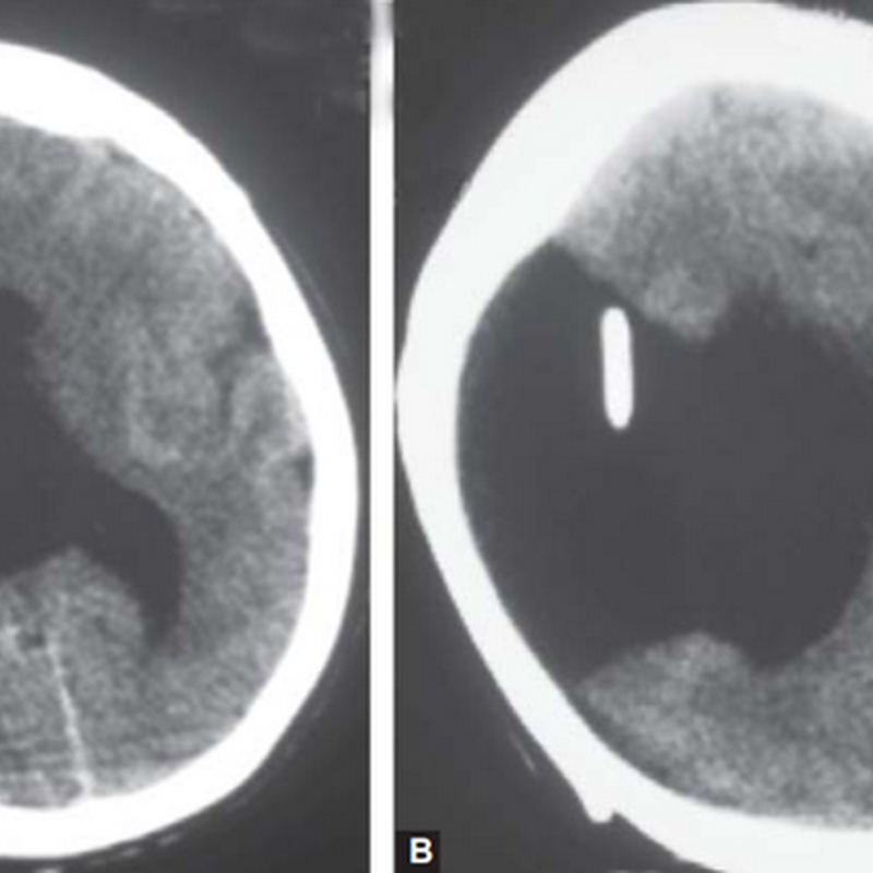 A 12 years old female, mentally retarded, known to have hydrocephalus with VP shunt.
