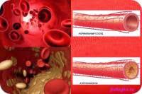 Значение холестерина