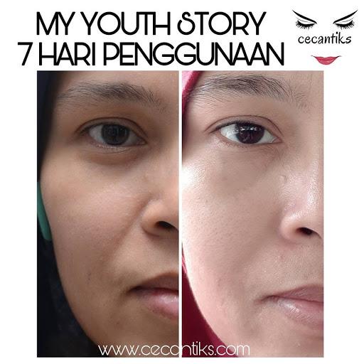 testimoni youth skincare shaklee, testimoni youth rakyat malaysia, testimoni youth skincare shaklee orang malaysia,  youth skincare shaklee, youth skincare, Set Penjagaan Wajah Awet Muda Shaklee, Set Penjagaan Wajah Shaklee, Youth Look Younger Longer, Youth Skincare Shaklee, Pengedar Shaklee Johor, Pengedar Vivix Johor, Pengedar Vivix Shaklee, Bulan March Skin Care Terbaru Di Lancarkan, Pengedar Shaklee pengerang, pengedar shaklee set skin care shaklee, Set Skincare terbaik, skin care semulajadi, skincare shaklee untuk kulit berminyak skincare shaklee untuk kulit kering skin care shaklee untuk jerawat testimoni skin care shaklee skin care shaklee untuk jeragat harga skincare shaklee   Testimoni, Testimoni Vivix, Vivix shaklee, Pengedar Shaklee Johor, Pengedar Vivix Johor, Pengedar Vivix Shaklee, vivix shaklee reviews shaklee vivix side effects vivix shaklee harga 2016 vivix shaklee price vivix shaklee testimonials vivix shaklee cancer vivix shaklee ingredients shaklee vivix malaysia shaklee vivix side effects vivix shaklee cara makan vivix untuk sakit buah pinggang ubat buah pinggang paling mujarab makanan untuk pesakit buah pinggang cara mencegah sakit buah pinggang buah pinggang rosak penawar sakit pinggang daun sup cuci buah pinggang tanda sakit buah pinggang tahap 4 ubat sakit pinggang yang mujarab does shaklee vivix work vivix shaklee cara makan shaklee vivix cancer shaklee vivix ingredients shaklee vivix benefits shaklee vivix review shaklee vivix price shaklee vivix testimonials Images for shaklee vivix cancer shaklee cancer testimonials shaklee cancer treatment nutriferon and cancer nutriferon negative side effects shaklee nutriferon side effects does shaklee vivix work shaklee vivix side effects shaklee vivix testimonials vitalea for children  Makanan Kesihatan Shaklee Untuk Kanak-Kanak, Multivitamin Kana-kanak, Product, Produk, Produk Label, Vita-Lea For Children, Vita-Lea For Kids, Pengedar shaklee johor, pengedar vivix johor pengedar shaklee pengerang pe