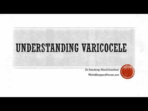 Varicocele means dilatation and elongation with tortuosity of the veins of the spermatic cord.