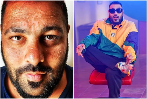 Rapper Badshah's face scorched in Maldives holiday, Varun Dhawan commented