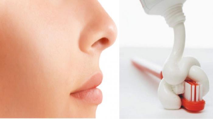 Bahaya Pasta Gigi Untuk Menghilangkan Jerawat di Wajah
