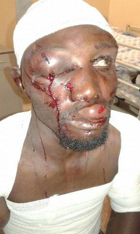 Omg..!!!😫😫😫 two Nigerians beaten and almost murdered by South Africans (See graphic photos)