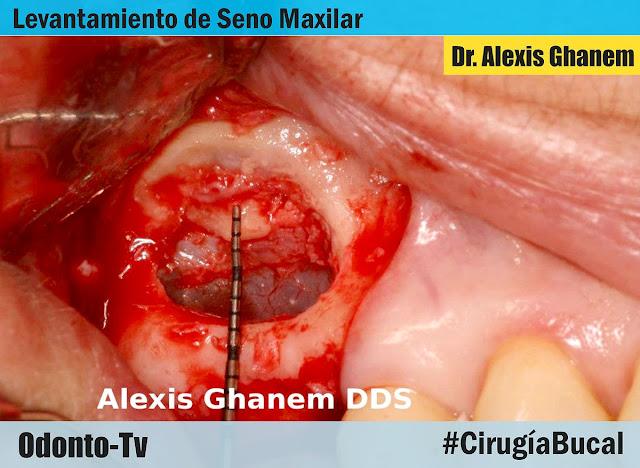 levantamiento-seno-maxilar.jpg