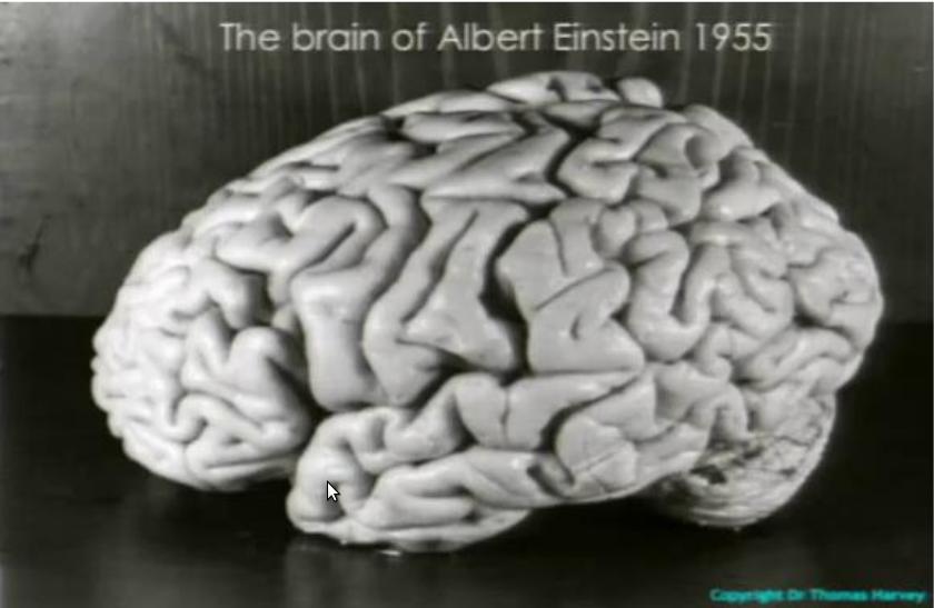 Após Einstein ter pedido claramente para ser cremado, o patologista Thomas Harvey desobedece o pedido do físico e retira sem a permissão dos familiares o cérebro de Einstein