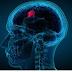 Cara Penanganan Tumor Otak yang Efektif