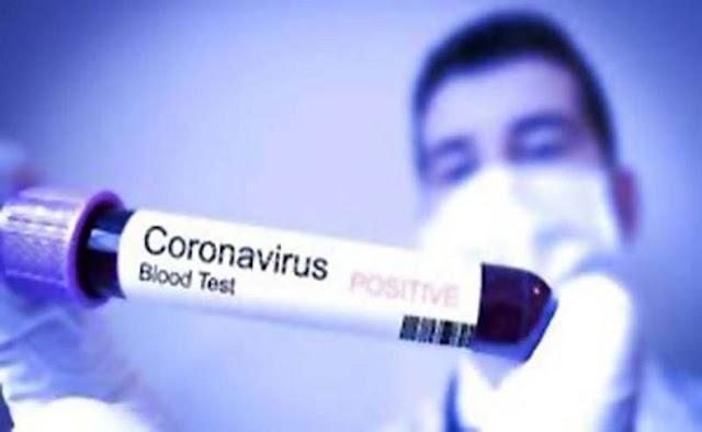 """💁♂️ """"या""""परिसरातील रुग्ण कोरोना पॉझिटिव्ह"""