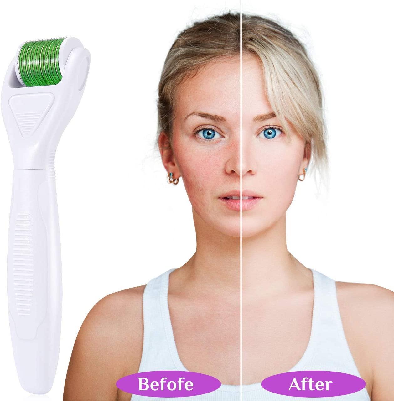 Rodillo de tratamiento facial