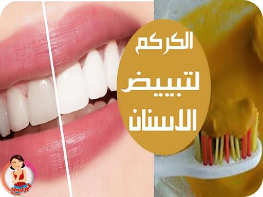 وصفات الكركم لتبييض الاسنان تجربتى مع الكركم وزيت جوز الهند لتبييض الاسنان فور ليدى