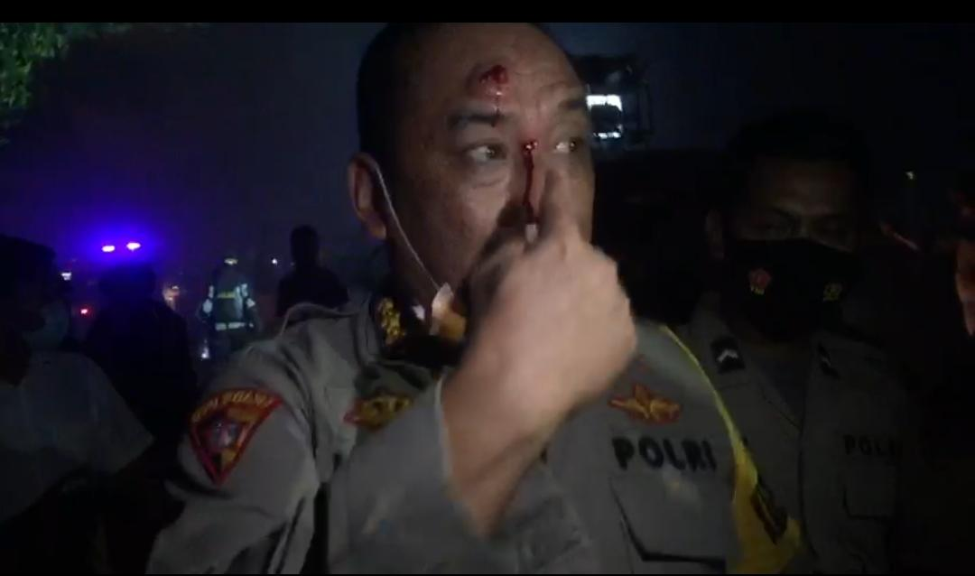 Karo Ops Polda Banten Terluka, Akibat Lemparan Batu Aksi Demo Ricuh Mahasiswa