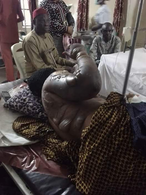 See What Fire outbreak did to a woman and her daughter in Anambra