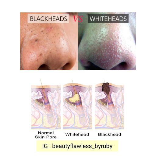 whitehead dan blackhead