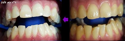 הלבנה הלבנת שיניים אסתטיקה דנטלית גיא וולפין ZOOM