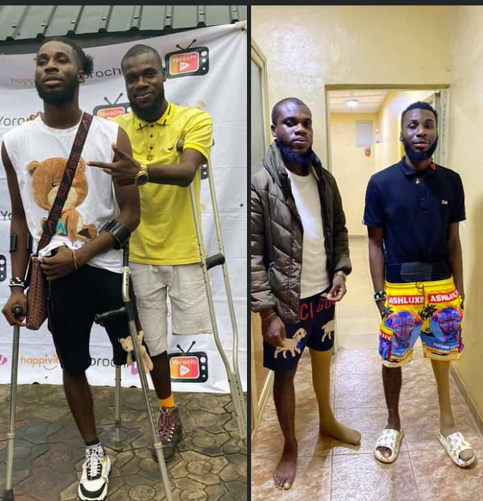 Do You Remember the Idika brothers Who Lost One Leg Each? They Can Now Walk Again, Thanks To YorochiTv