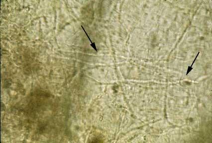 Hifa micótica (flechas) en raspado de piel aclarado con KOH al 10%.