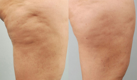 injection anti cellulite