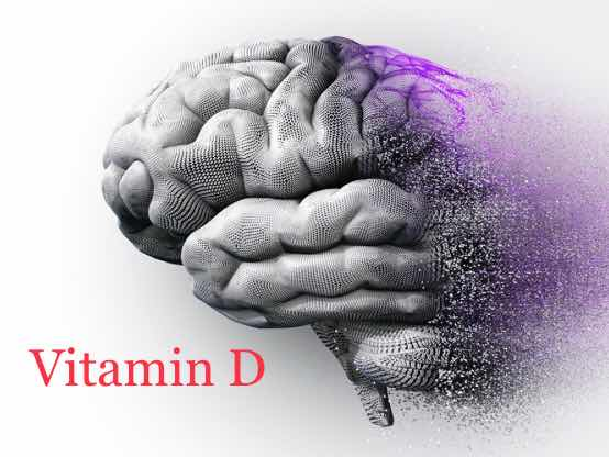 Vitamin D does not offer protection against Alzheimer