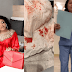 Bobrisky shares bloody photos as he gives update on his recent liposuction surgery (Images)