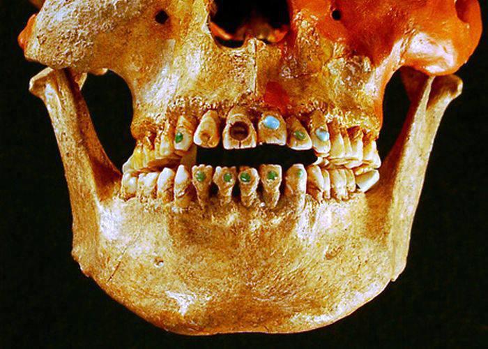 Caveira Maia com os dentes ornamentados em pedras preciosas.
