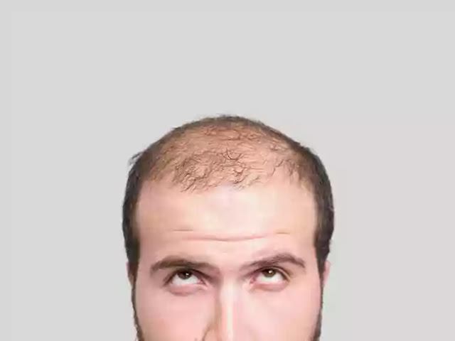 Cure for Balding