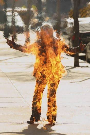 human body Burn
