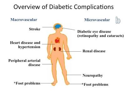 Bahaya Komplikasi Diabetes