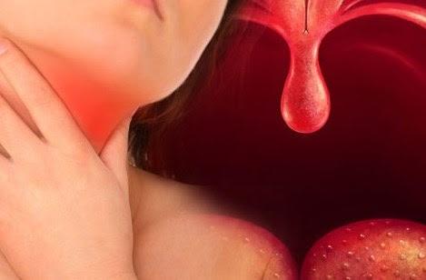 ¿Qué es la faringitis crónica?