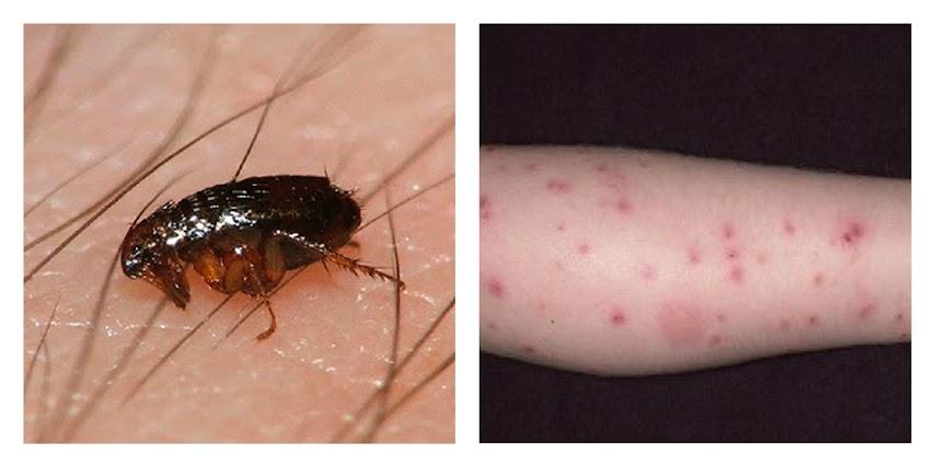 salud-pulga-picadura-qué-hacer-curar-tratar