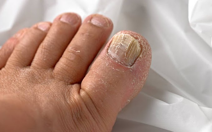 Nail fungus:What is the best treatment for nail fungus?