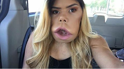 This Beauty Vlogger With Cystic Hygroma Proves That Self-Acceptance Is All That Matters