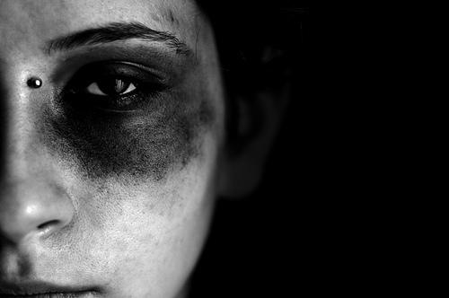 Smurtavimas prieš moteris