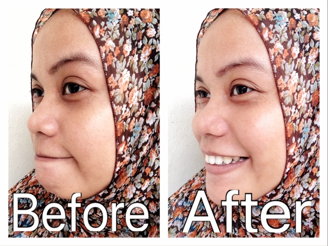 before after pakai jafra mud mask