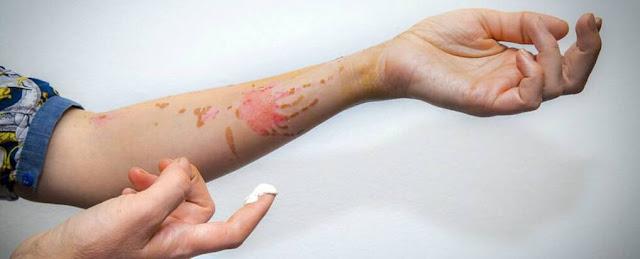 bahan-alami-efektif-hilangkan-luka-bakar