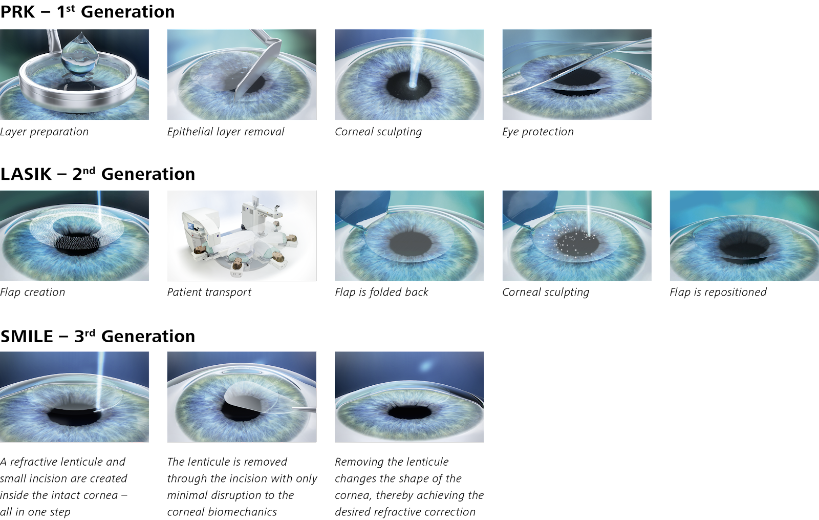 Laser Eye Surgery - compare steps for PRK, LASIK and SMILE laser eye surgery