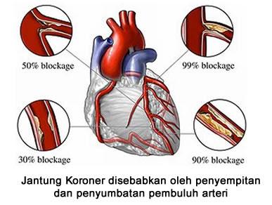 Obat Tradisional Penyempitan Pembuluh Darah di Jantung